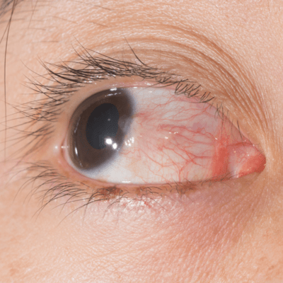 pterygium symptoms