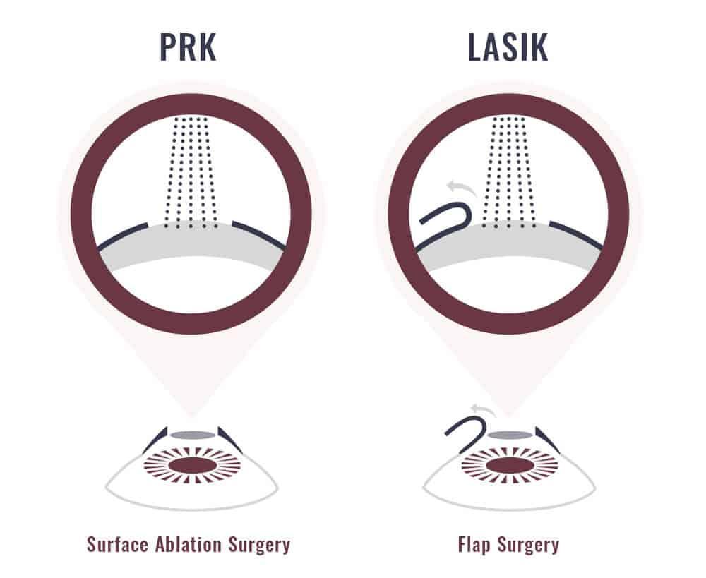 Smartsurface PRK vs LASIK surgery