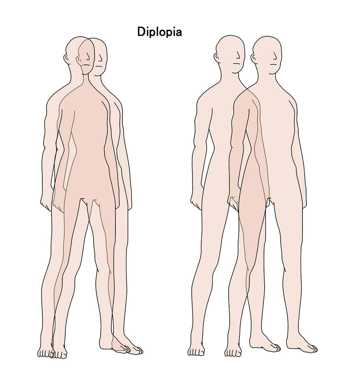 Double Vision Diplopia